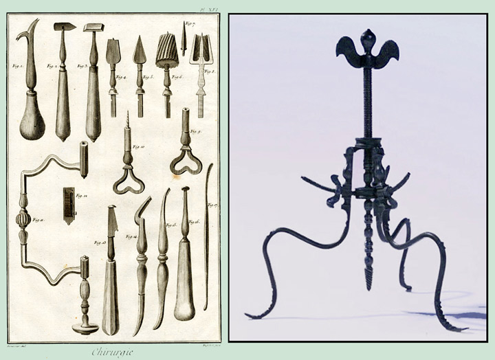 Trepanation Tools Trepan  or how i learned toTrepanation Tool