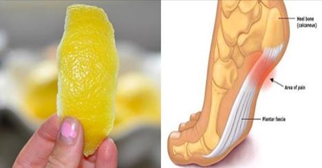 Así puedes utilizar la cáscara de limón para acabar con la inflamación.