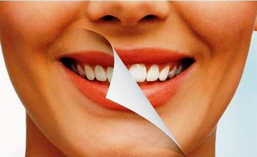 Cara Mudah Memutihkan Gigi Dengan Cara Alami
