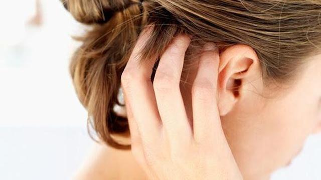 Obat Gatal pada kulit kepala