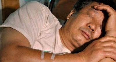 Sadis! Alat Kelamin Dijarah Perampok Saat Tertidur Pulas [ www.BlogApaAja.com ]