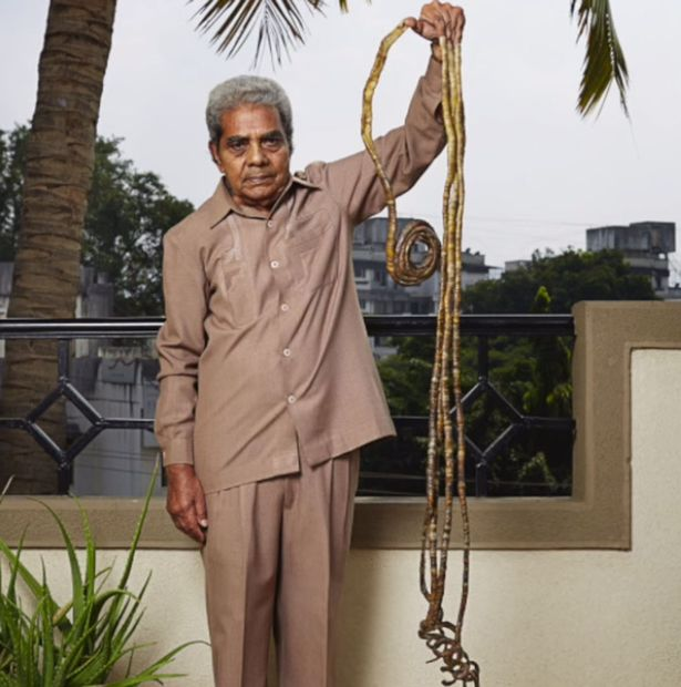 The world's longest finger nails,Shridhar Chillal with the world's longest finger nails