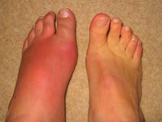 obat tradisional kaki bengkak akibat asam urat