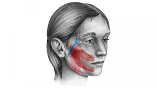 Anamnese na Paralisia Facial
