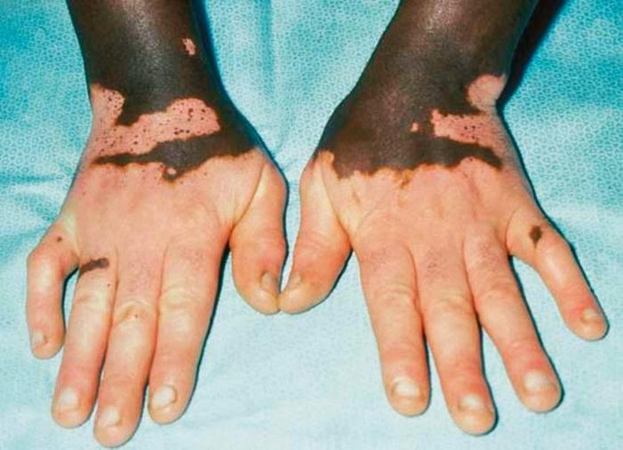 Hasil gambar untuk vitiligo general
