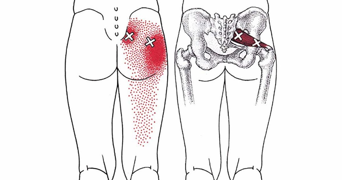 Боли в левом тазобедренном суставе при ходьбе
