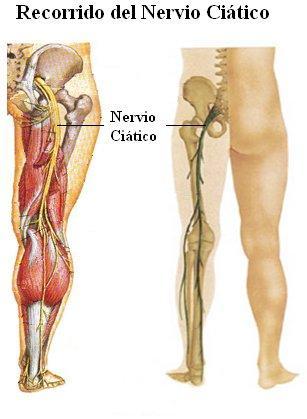 Fisioterapia y Salud: NERVIO CIÁTICO
