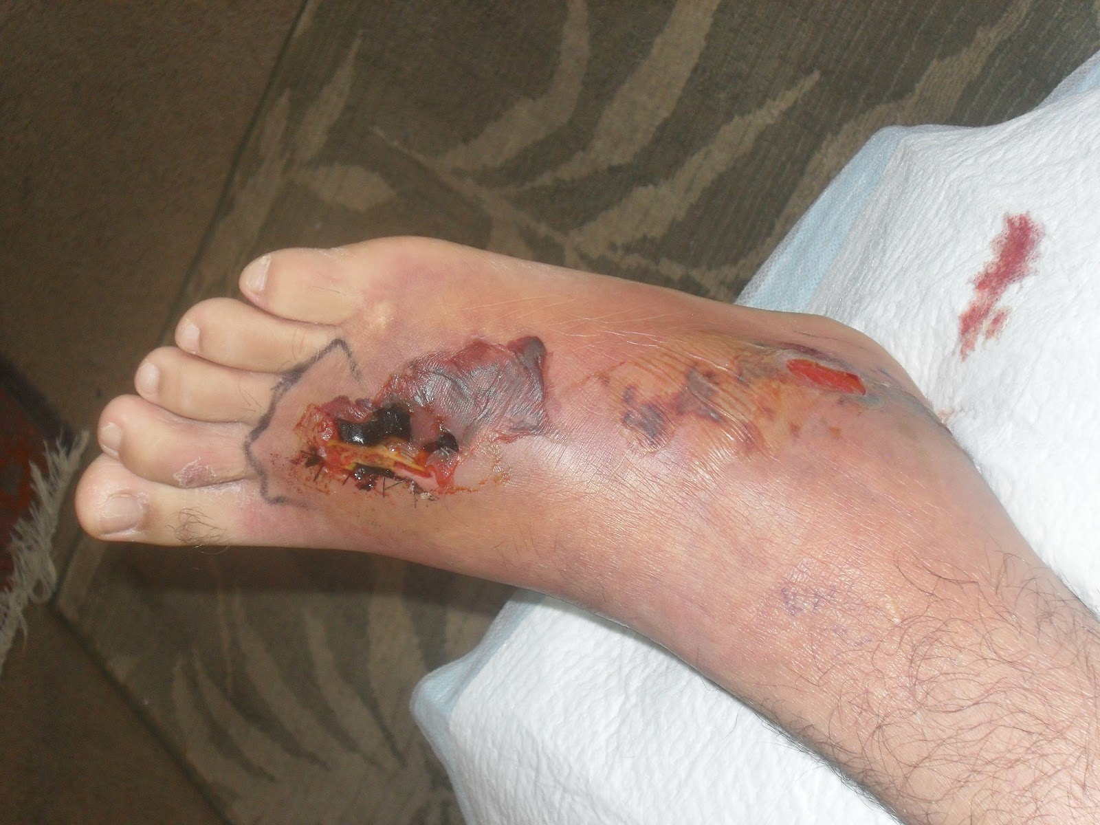 flesh eating bacteria Just days later, on jan 3, munoz, 37, of chula vista, california, died after contracting necrotizing fasciitis (commonly known as flesh-eating bacteria), an aggressive bacterial infection that.