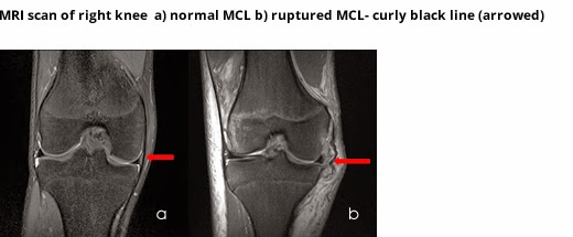 dislocation of the knee essay Physiotherapy advice following total knee replacement surgery  swelling around your knee is normal this can remain for up to 12 weeks following surgery.