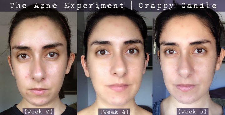 Aztec Healing Clay Mask Before and After :: The Acne Experiment