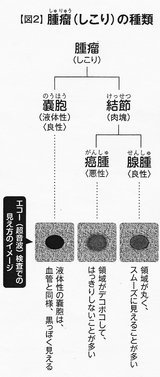 腫瘤(しこり)の種類