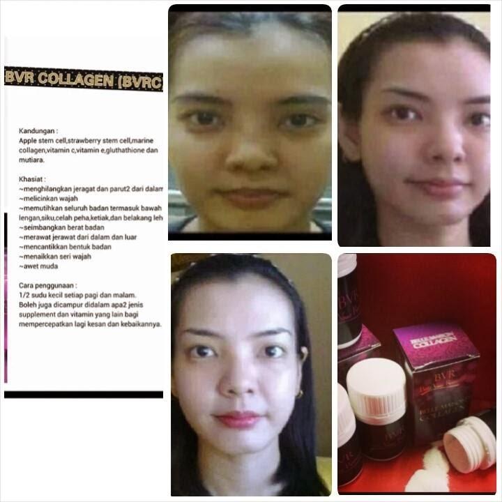 Mia Syuhada Shop Bvr Collagen