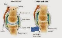 Tulang rawan (kartilago)