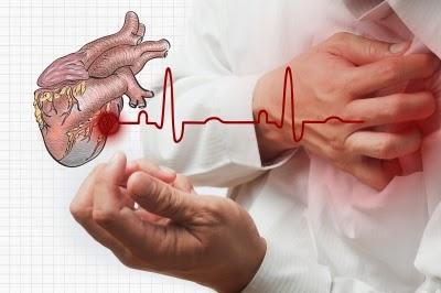 النوبات القلبية ودقات القلب
