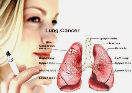 Gejala Kanker Paru-Paru, penyebab dan pencegahannya