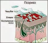 Температура при псориазе