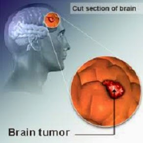 Penanganan Tumor Otak