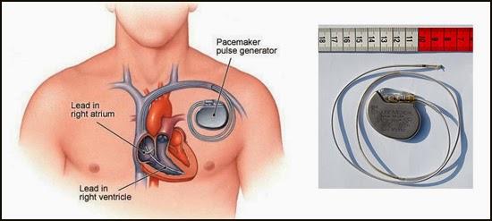 alat pacu jantung
