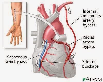 salur darah dari tangan