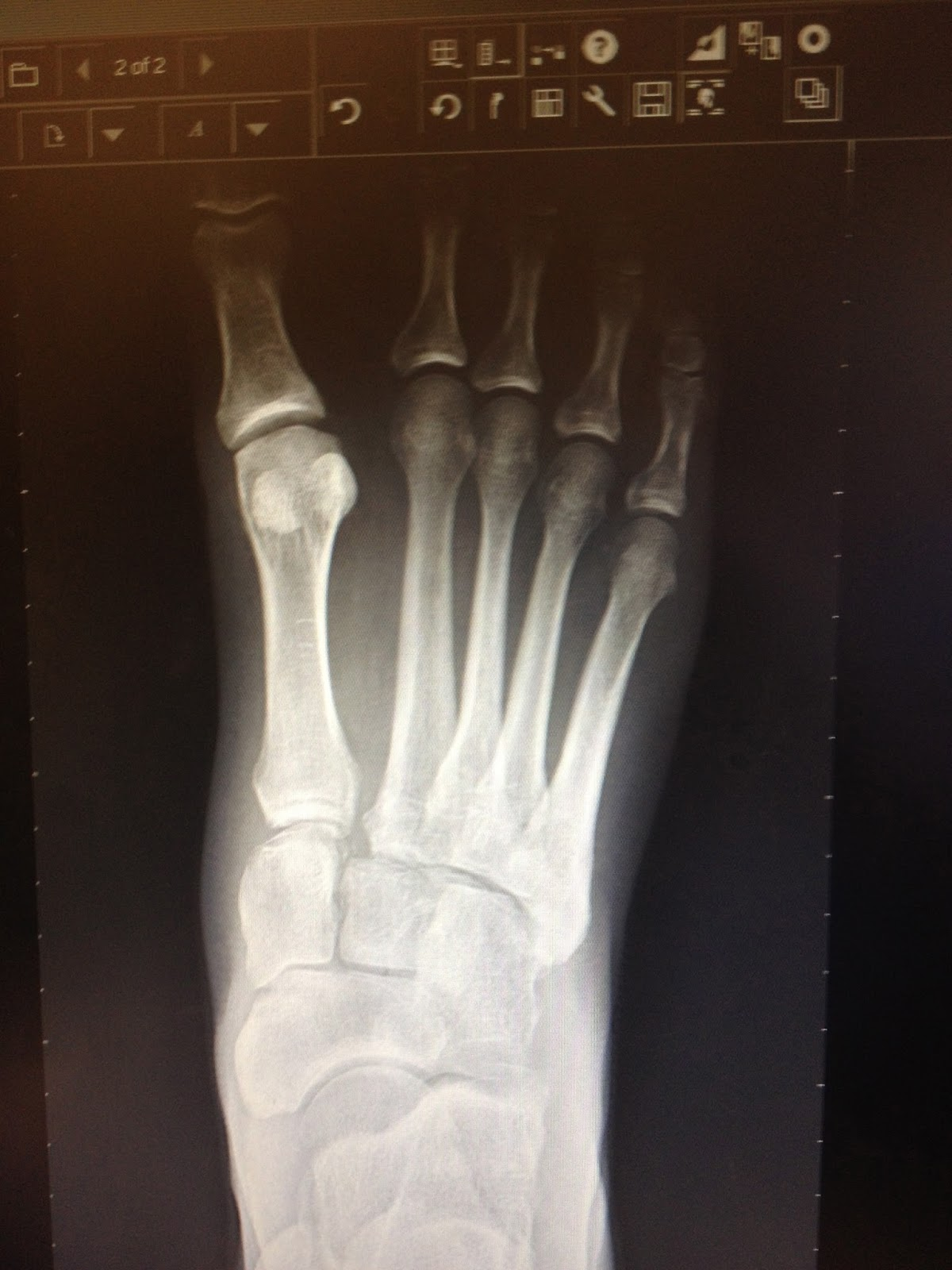 after lisfranc surgery  new technology for lisfranc