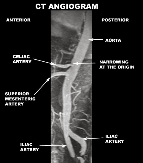 CTA abdominal anatomy | Radiology Anatomy Images