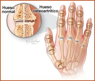 Traumatologia - Osteoartritis