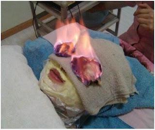 Perawatan Kecantikan Api