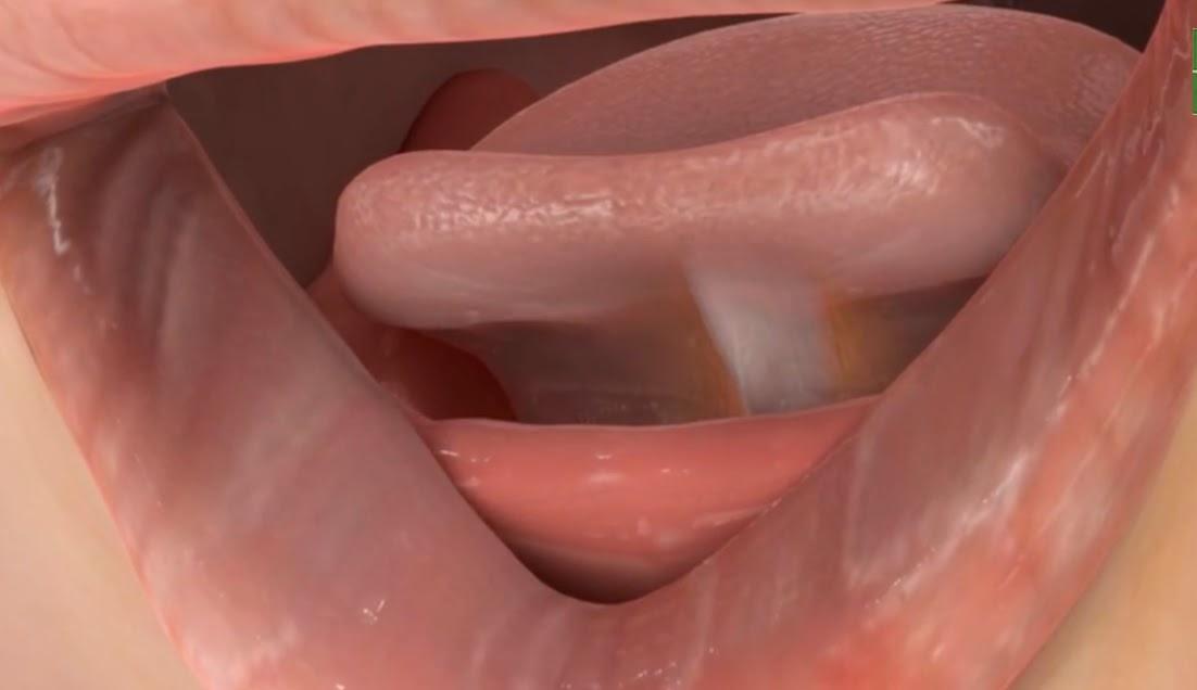 on posterior tongue tie treatment fauquier ent