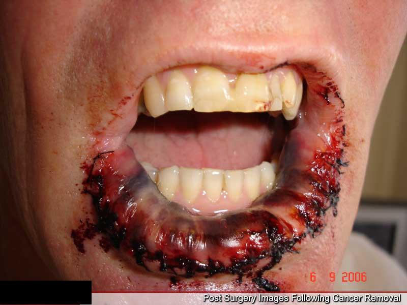 Lip Cancer Pictures Cancer Images Gallery