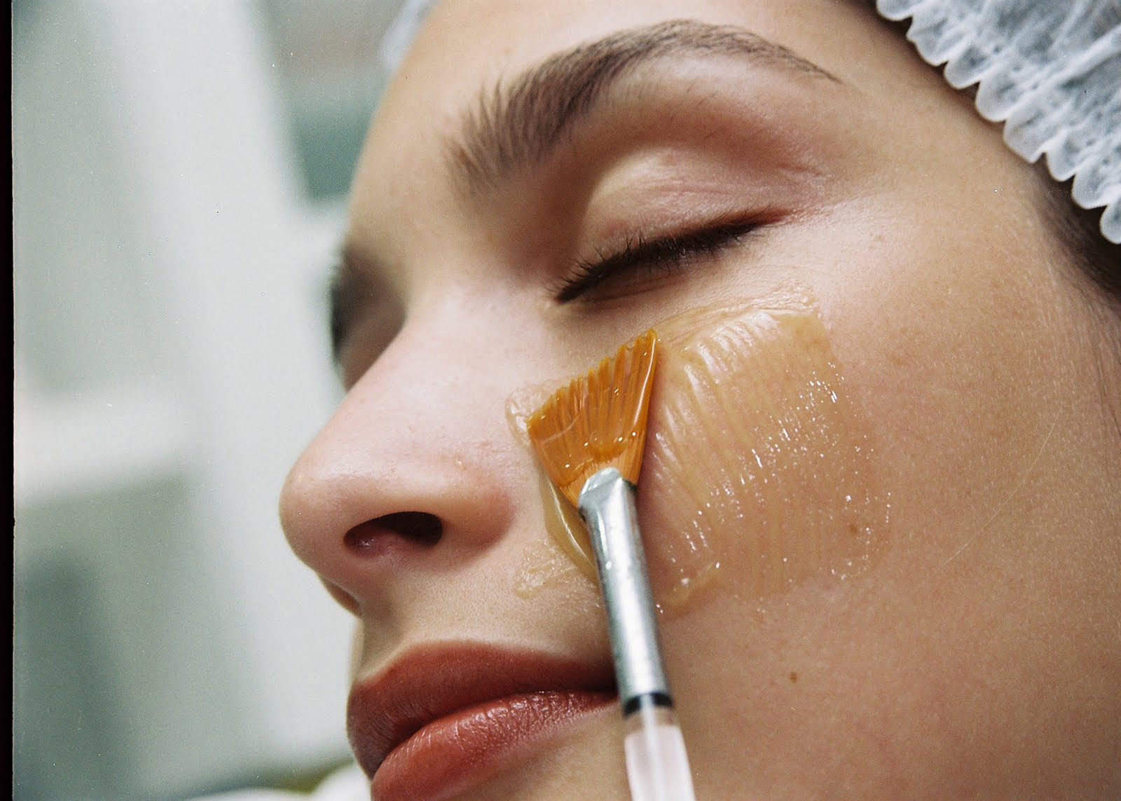 peeling profundo para cicatrizes de acne