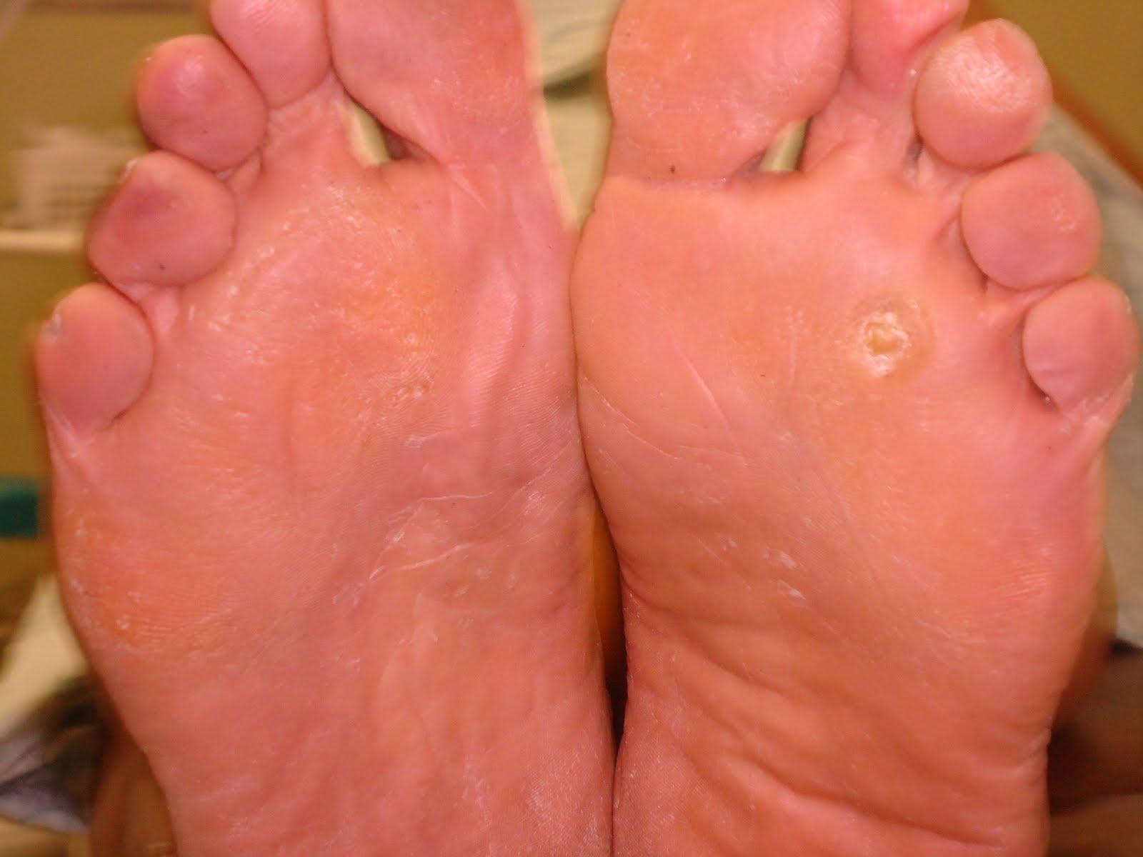 La foto del hongo sobre el alto de los pies