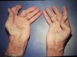 vitamin untuk mencegah rheumatoid arthritis