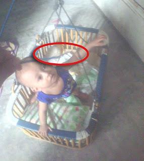 tali ayunan bayi putus
