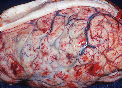 Treatment of headache ppt online