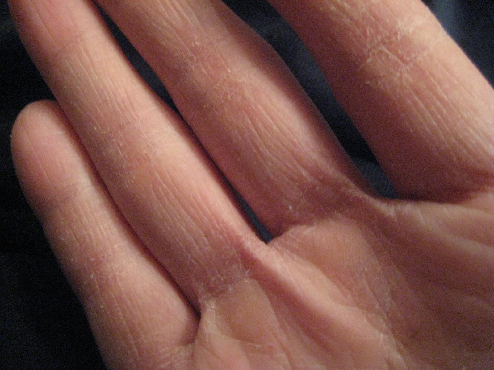 Что делать если сильно сохнет кожа рук и ног