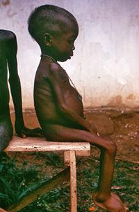 Imagenes de niños de africa
