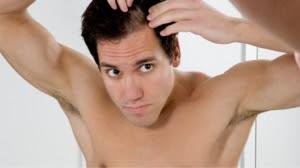 Penyebab Rambut Rontok pada pria