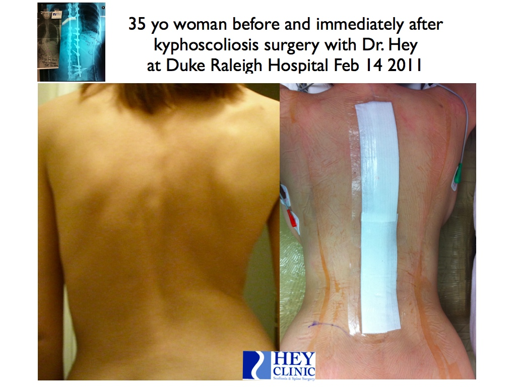 Image Gallery Scoliosis Pre-surgery
