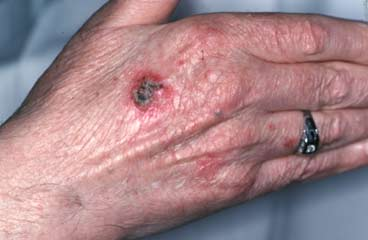 Skin Cancer Symptoms: Pictures of Skin Cancer and ...