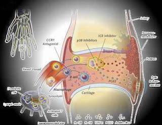 Askep - Asuhan Keperawatan Rheumatoid Arthritis
