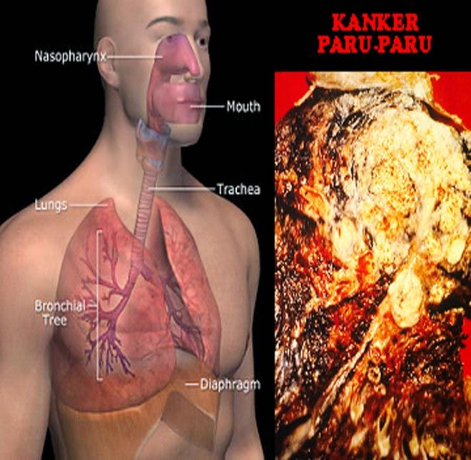 alternatif kanker Paru stadium 2, obat kanker paru, pengobatan kanker paru