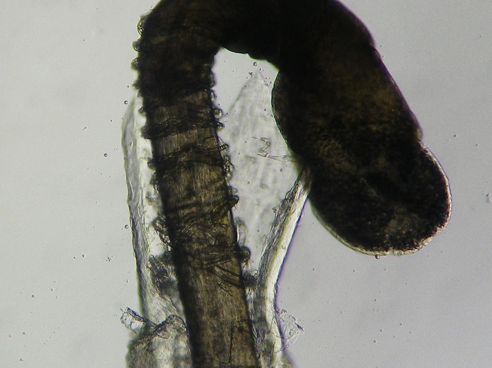 Hair Bulb Under Microscope Under the Microscope: ...