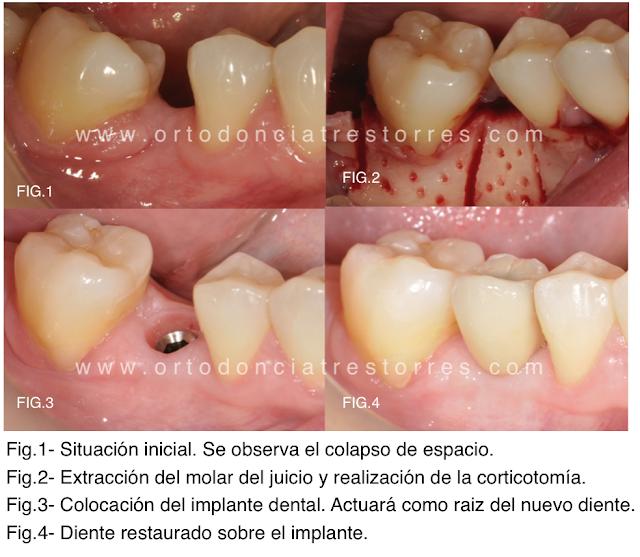 corticotomias-ortodoncia-barcelona