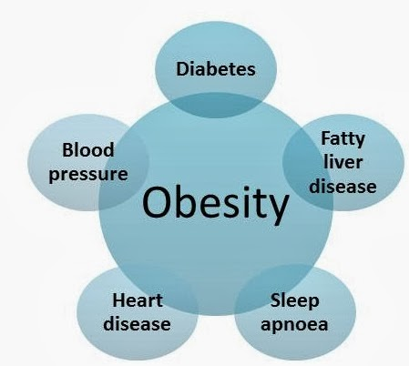 obesity research essay Free obesity papers, essays, and research papers these results are sorted by most relevant first (ranked search) you may also sort these by color rating or essay length.