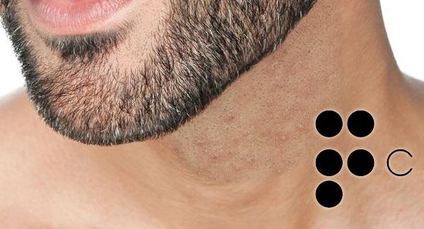 Estimulante del crecimiento del vello facial