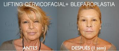 lifting_facial_estiramiento_facial_cirujano_plastico