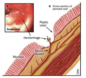 Bleeding Ulcer, or What can Happen if You Don't Treat a Simple Ulcer