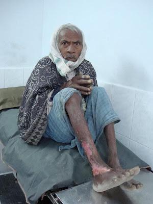 Jagadguru Kripalu Charitable Hospital Success Story