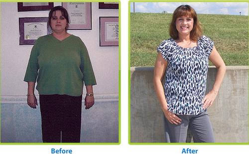 Weight-Loss :: Mindful Weight Loss. Weight-Loss-Surgery