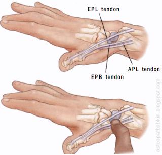 Пальпация ладьевидной кости os scaphoideum в анатомической табакерке